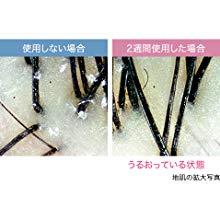 EH-NA9A-CNはスカルプモードとスキンモードも